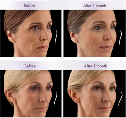 Juvéderm VOLUMA™ XC | Before & After | Washington D.C.